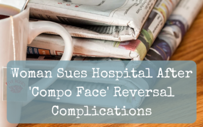 Woman Sues Hospital After 'Compo Face' Reversal Complications